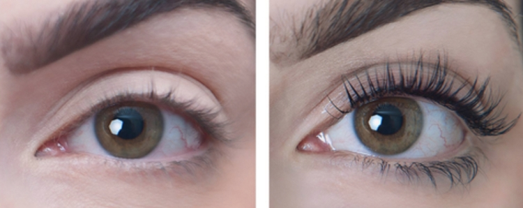 sugarlash-before-and-after